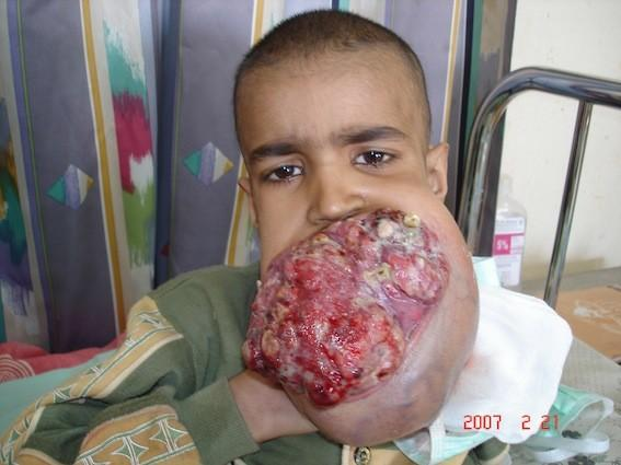 Boy Mouth iraq